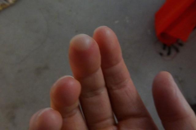 Frostbite blister.